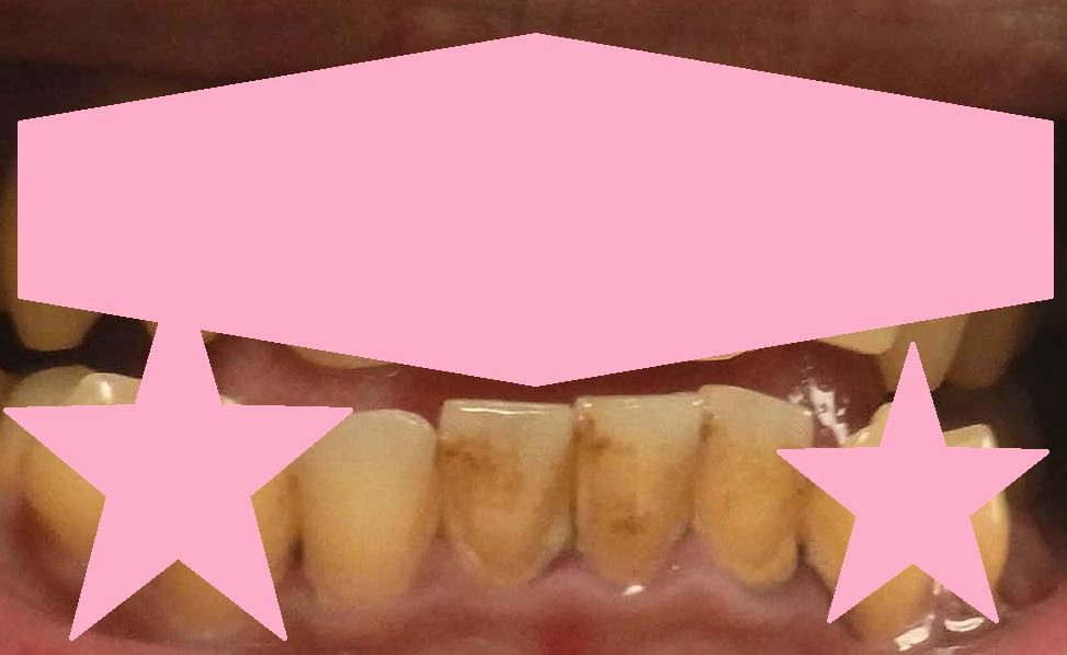 歯を磨いた途中経過