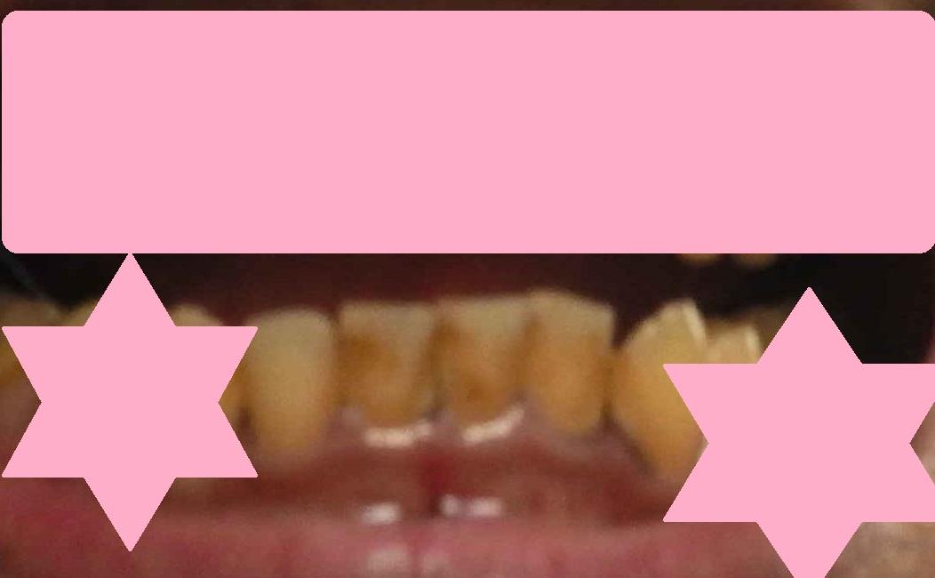 美白前の汚い歯