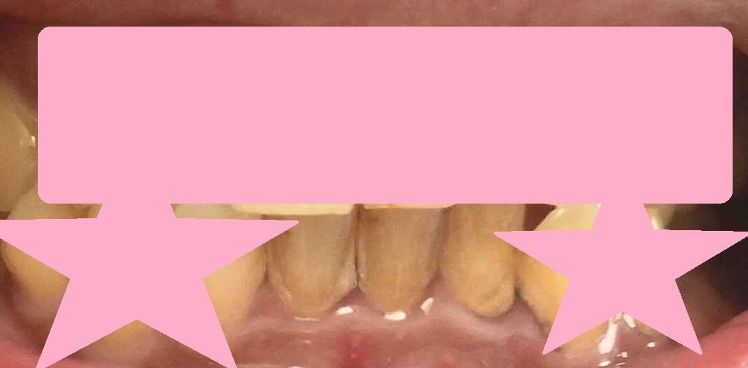 歯の汚れが取れた